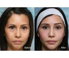 BUEC - eye bag removal in Singapore